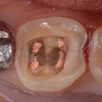 みんな嫌い! 歯の神経の治療でやられてること。