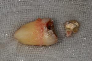 親知らずに虫歯ができた。そんな時の治療法は?