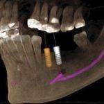 歯科用CTはこんな時に役にたちます。(インプラント編)