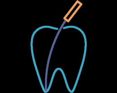 歯を残したい・根管治療