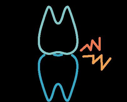 歯がすり減る・歯ぎしり